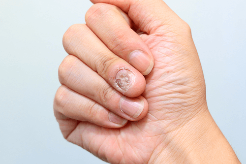 Nail fungus fingers
