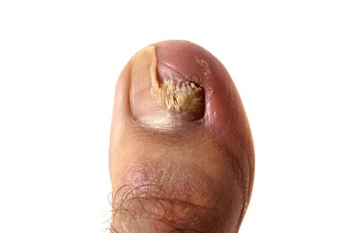 Nail fungus severe