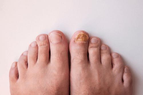 Nail fungus toes