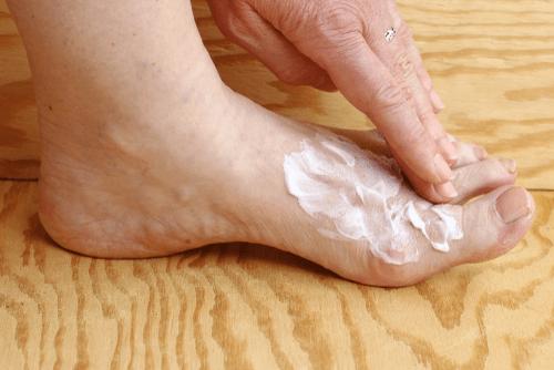 Athlete's Foot : Facts, causes, symptoms, genetics