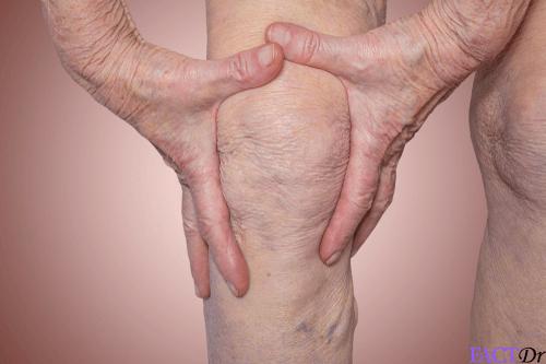 geriatric health arthritis