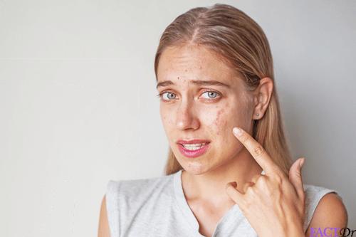 levocetirizine caused skin reaction
