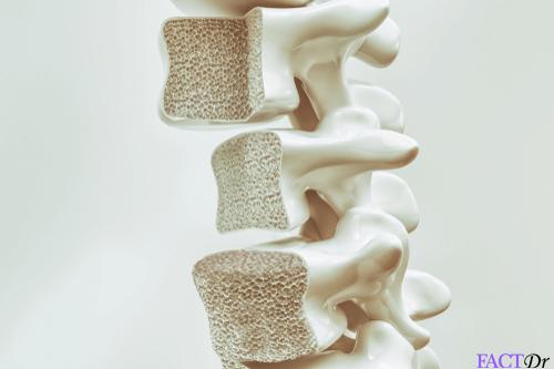 Milk Thistle osteoporosis