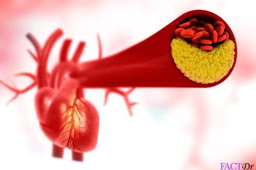 canola oil clogged artery