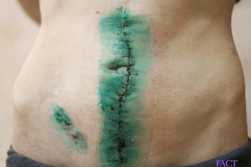 crohn's disease surgery