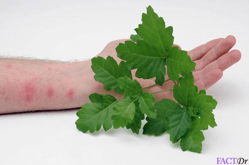Poison oak rash