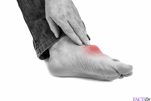gout diet pain