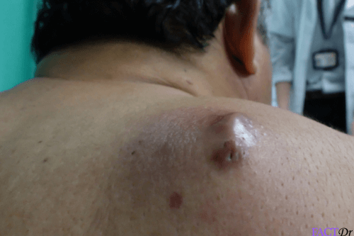 Sebaceous Cyst: Removal, treatment, & safe draining   FactDr