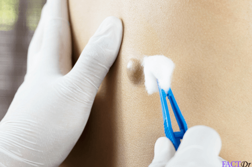 Sebaceous Cyst: Removal, treatment, & safe draining | FactDr