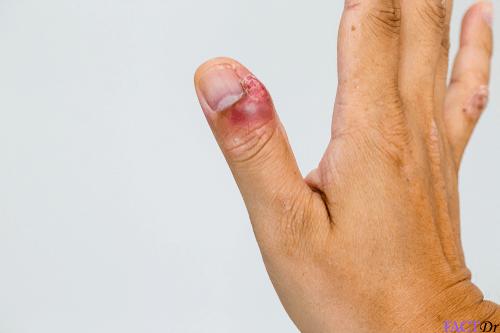 Hangnails: Symptoms, causes, types, remedies, & cure   FactDr