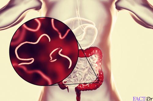 Pinworms felnőtt nőben Humán papillomavírus-fertőzés gyógyítható