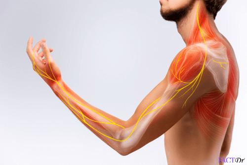 Pain-disorder_nerves