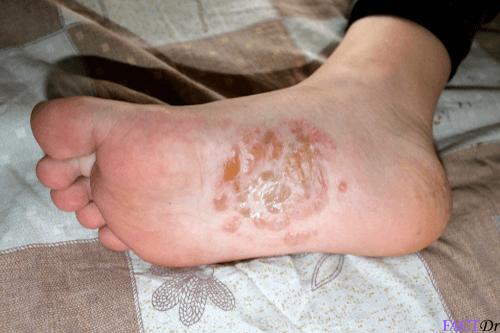 Dyshidrotic eczema : Symptoms, causes, itching, relief