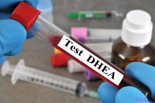 DHEAS test