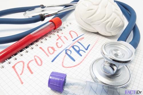 PROLACTIN-(PRL)