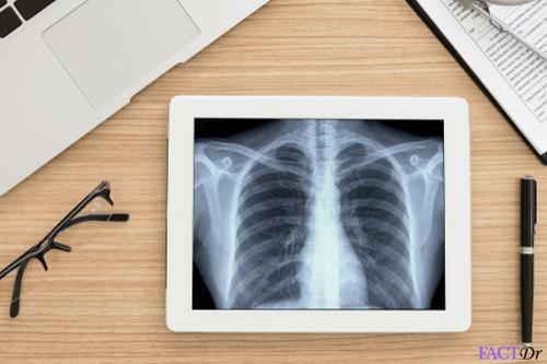 bone-scan-test