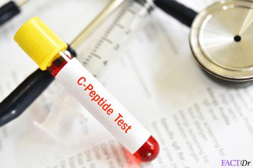 c peptide test