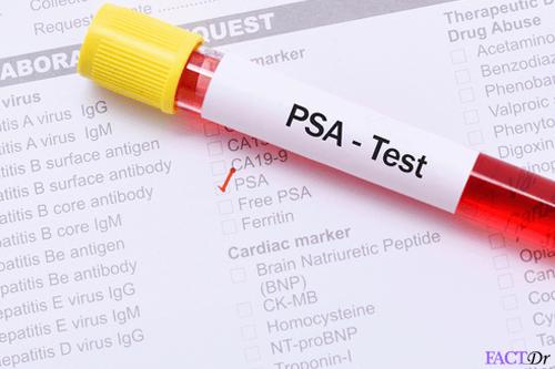 free psa test