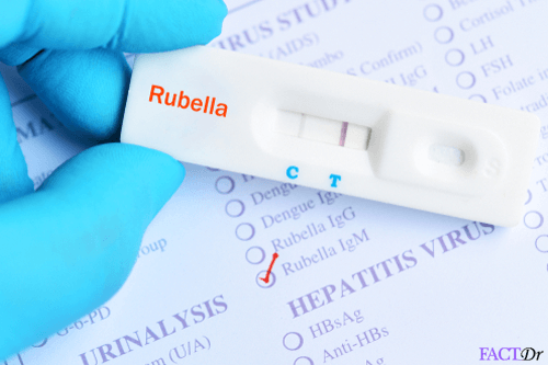Rubella IgM test