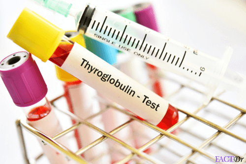 thyroglobulin test
