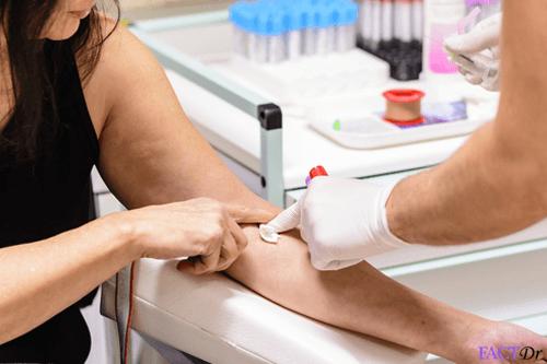 malarial antigen test
