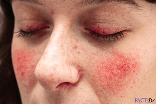 Flushed-skin-on-face