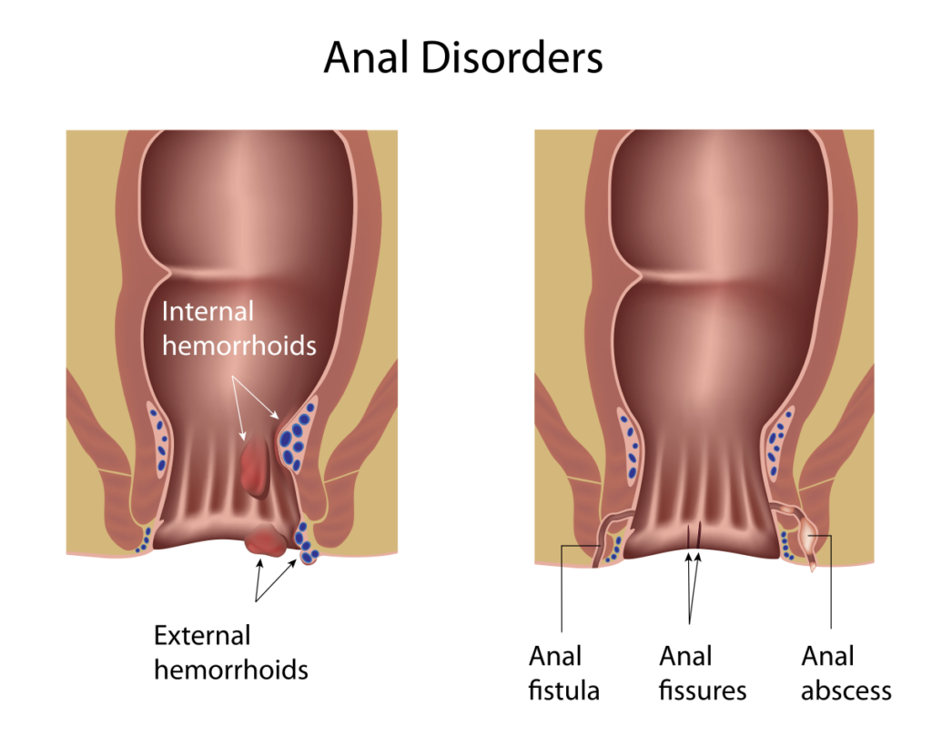 anal fissures disorders