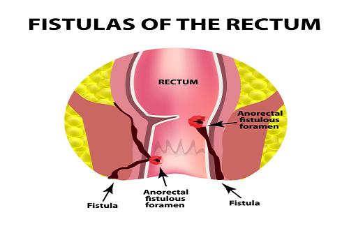 Rectum fistula