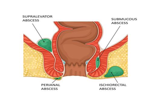 blood rectum