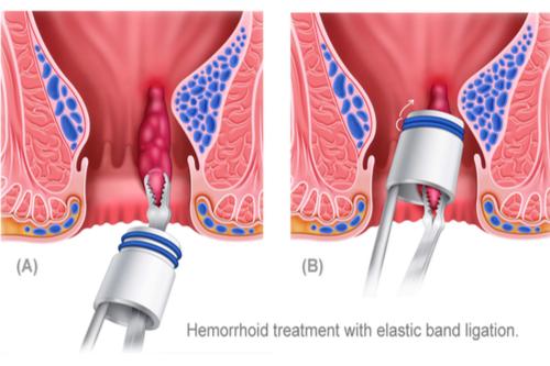 elastic band ligation