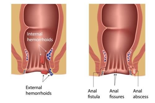 piles fissures fistula